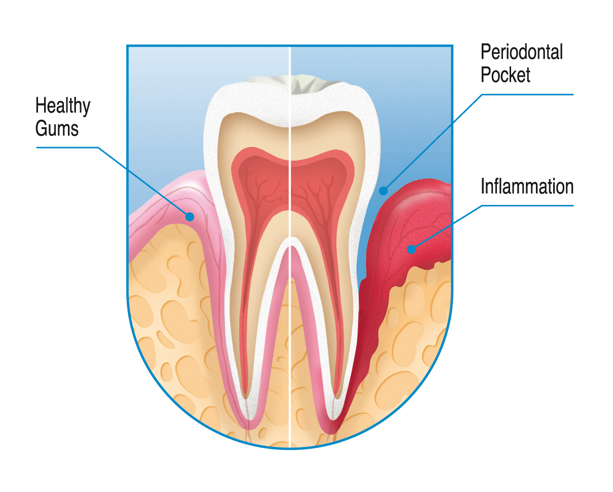 Tooth _PCh.fh9