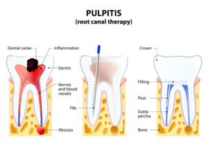 Root Canal Treatment - Kyle, TX - Toothache Relief